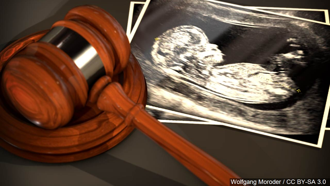 abortion law_1557937101024.jfif.jpg