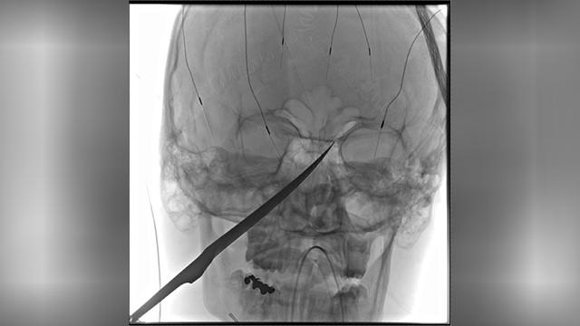 Kansas boy knife in skull-873703986-873703986